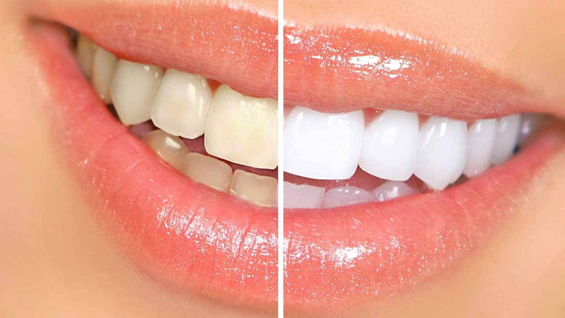 Perladent - stomatološka ordinacija novi sad